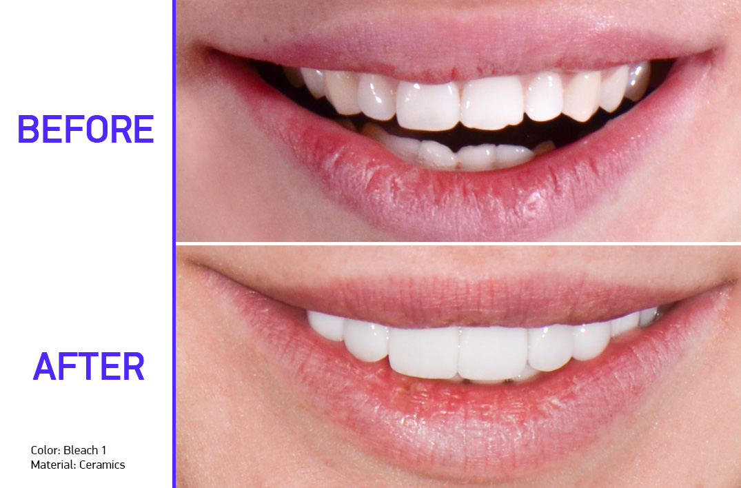 veneers installation