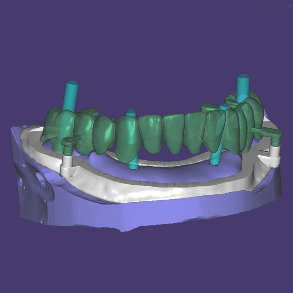 Implantu veidņu noņemšana