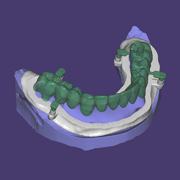 Attempt to install temporary teeth with connectors that attach to the positioning mouth guard at the base