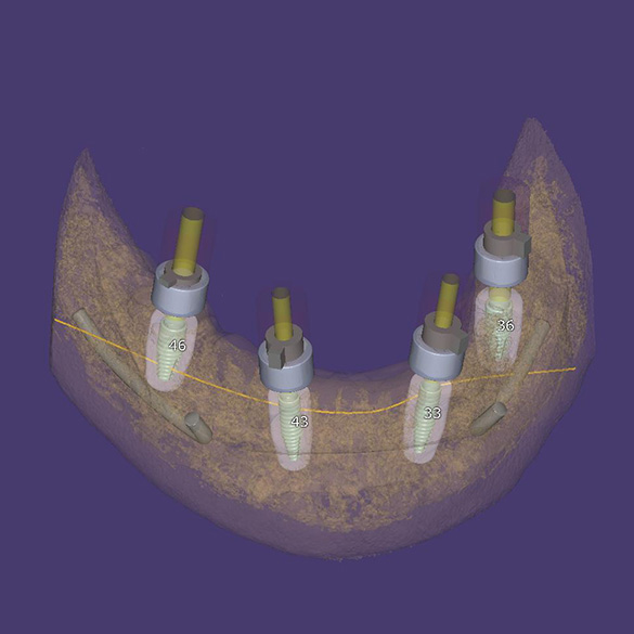 Tomography of the position of dental implants in the bone