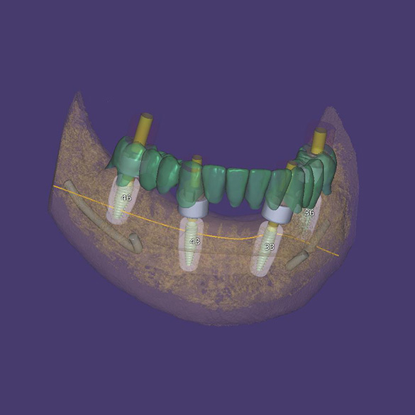 Overview of the position of implants in the bone with a temporary tooth design
