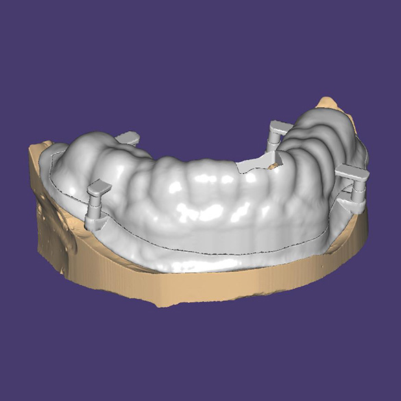 Installation of a folding positioning mouth guard on the teeth