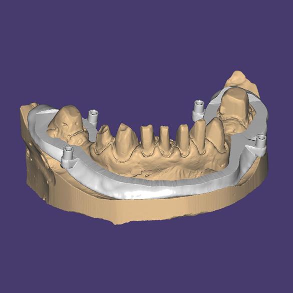 Pozicionējošas zobu kapes augšpuses nogriešana