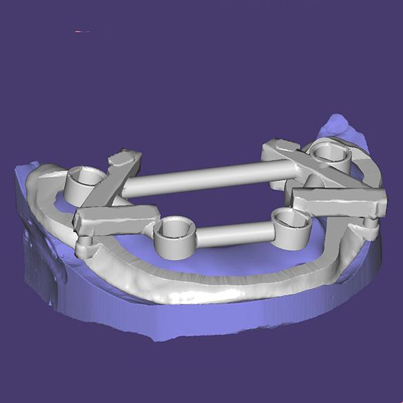 Gida ievietošana priekš implantāta uzstādīšanas uz pozicionējošas zobu kapes (saskaņā ar programmas aprēķiniem)
