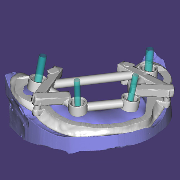 Gida ievietošana priekš implantāta uzstādīšanas uz pozicionējošas zobu kapes (saskaņā ar programmas aprēķiniem).