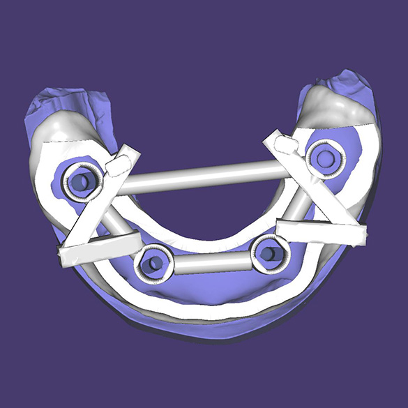 Placing a guide for installing implants on a positioning mouth guard (according to program calculations)