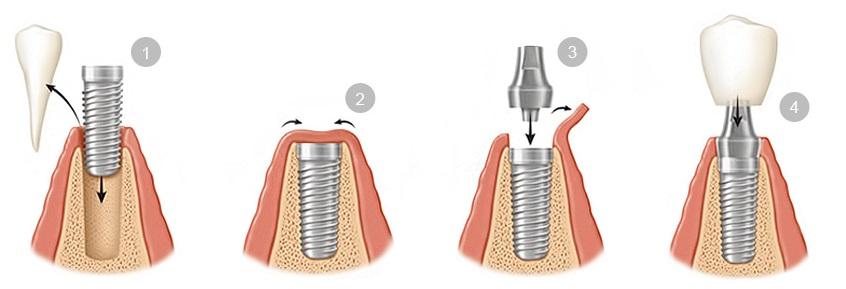 пошаговая установка импланта