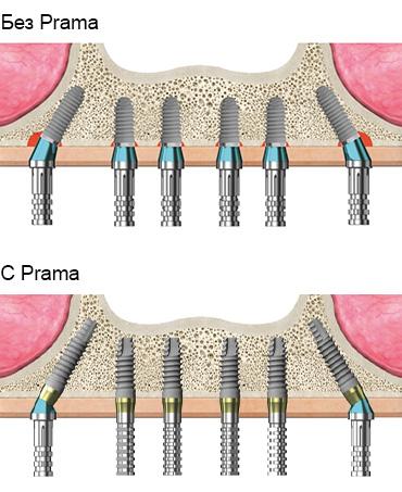 интрамукозальные импланты prama