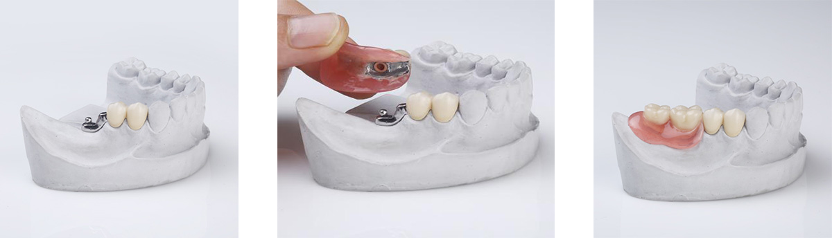 partial dentures (precision attachments)