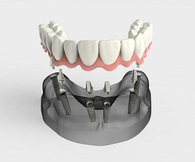 протезирование зубов в риге