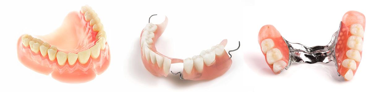 съемные протезы (removable dentures)