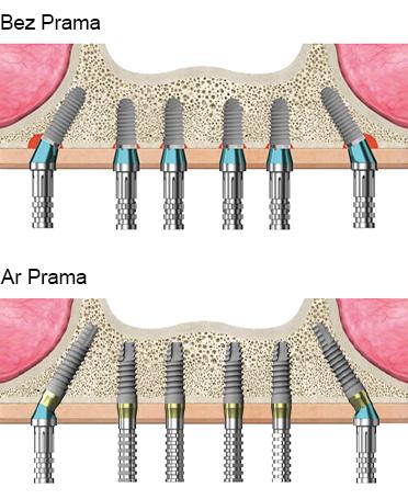 zobu implanti prama