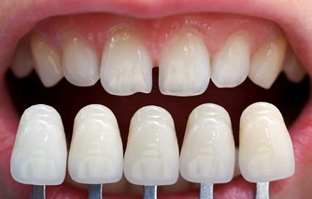 установка виниров на кривые зубы