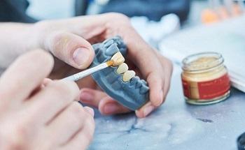 как делаются коронки на зубы